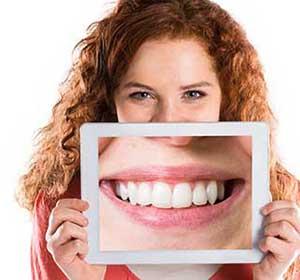 Alles über schöne Zähne-190914144227