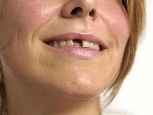 Zahnluecke-Zahnarzt-Dr-Dreissig-in-Dinkelsbuehl