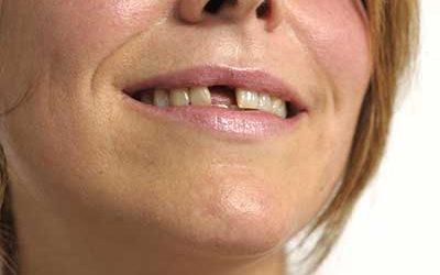 Wenn einzelne Zähne fehlen