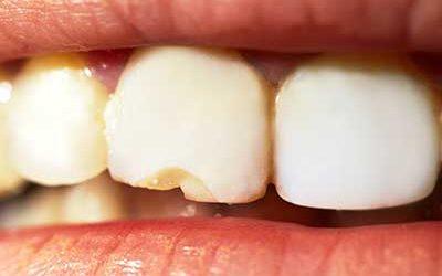An einem Zahn sind Teile abgebrochen