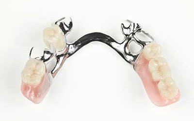 Hilfe bei geschädigten und fehlenden Zähnen
