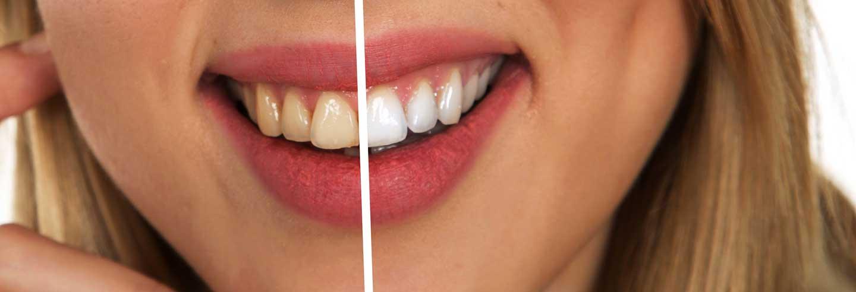 weiße zähne hausmittel-180427154232